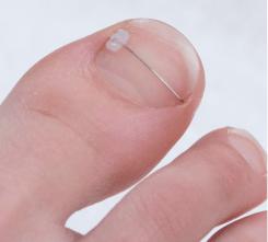 ortonixia en segovia, uñas encarnadas segovia, braquets pies segovia, pies segovia, podologia en segovia, ronda podologos segovia