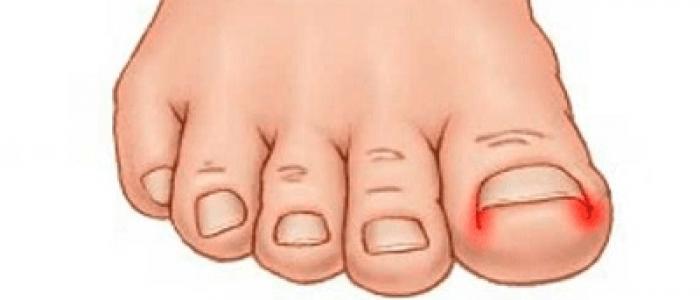 uñas encarnadas, uñas enterradas, uñeros en los pies, uñeros, uña clavada, uña incarnada, una incarnada, Onicocriptosis